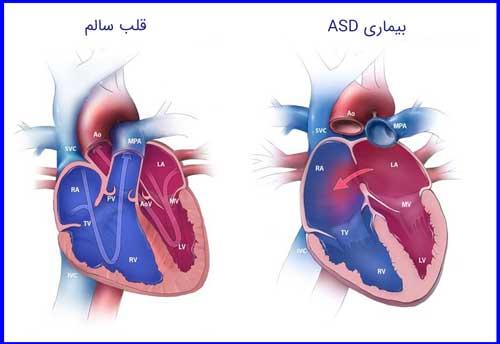 بیماری asd