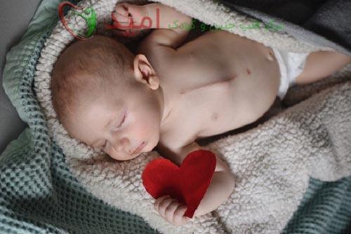 علائم بیماری مادرزادی قلبی