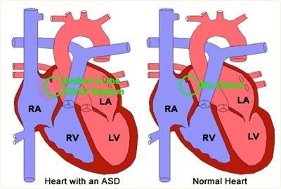 ASD چیست ؟