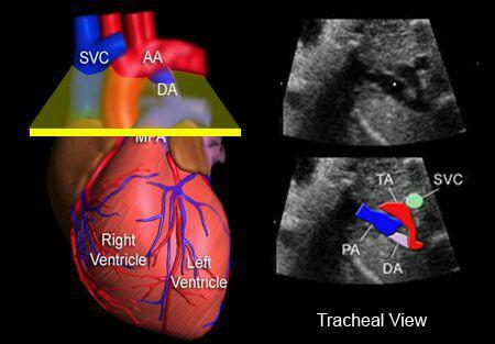 تست اکوی قلبی یا اکوکاردیوگرافی