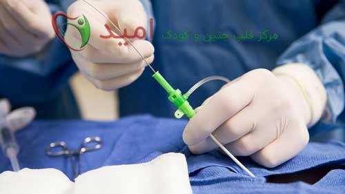 انجام کاتتریزاسیون برای درمان PDA