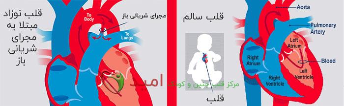 بیماری مجرای شریانی باز – pda چیست ؟