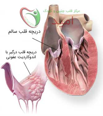 تاثیر بیماری اندوکاردیت عفونی روی دریچه قلب