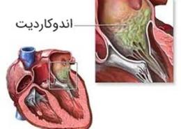 بیماری اندوکاردیت عفونی (Endocarditis) - علل , علائم , تشخیص و درمان
