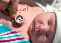 سوراخ در قلب نوزادان و کودکان
