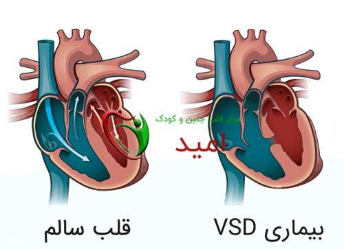 علائم نقص دیواره بین بطنی (VSD)