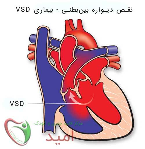 تشخیص سوراخ بین بطنی - بیماری VSD